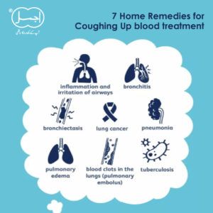 7 Home Remedies for Coughing Up blood treatment