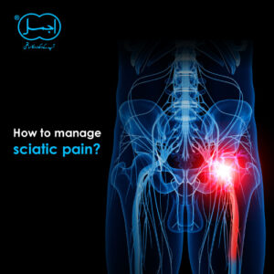 how to manage Sciatic pain